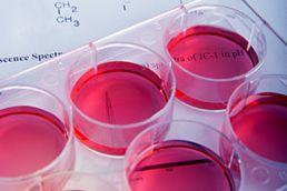 Früherkennung von Gesundheitsstörungen durch Labortests und Check-up Untersuchungen.